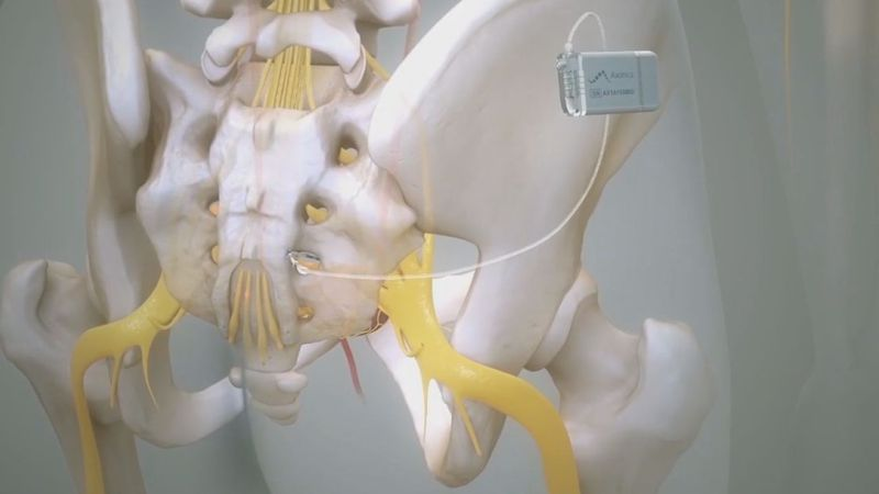 Axonics implant helps those with incontinence